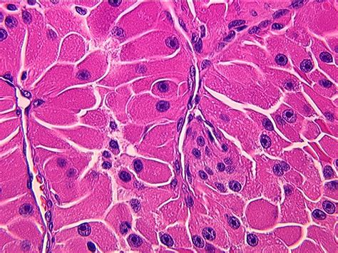 cancer cell hurtle papillary thyroid variant picture 1
