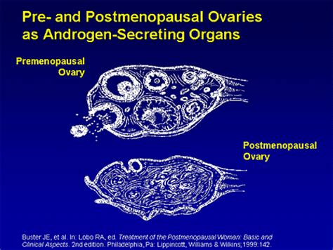 high testosterone ovaries picture 7