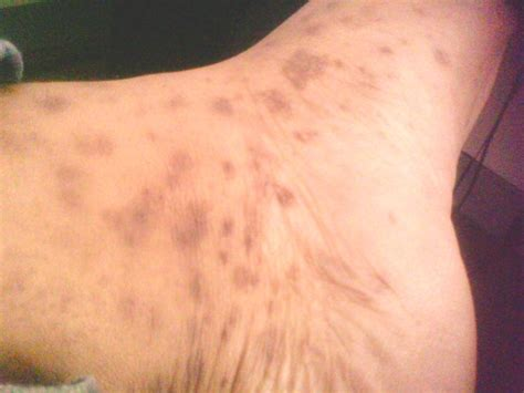 what are skin std picture 1