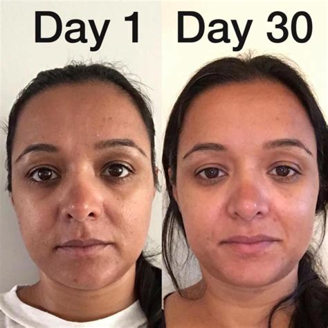 weight loss per day picture 5