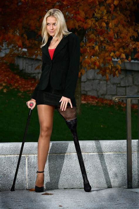 amputee woman peg leg picture 1