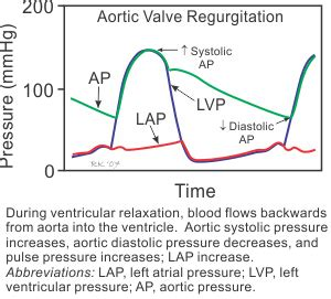 Aortic stenosis blood pressure readings picture 1