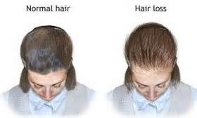 epilepsy and weight gain hair loss picture 6