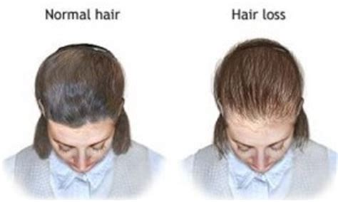 weight loss hair loss picture 11