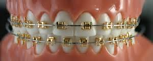 dr teeth gold picture 7