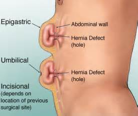 signs of intestinal infections due to herniated navels picture 2