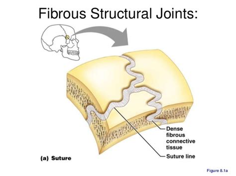 fibrous joint picture 9