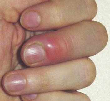 treating nail fungus picture 6