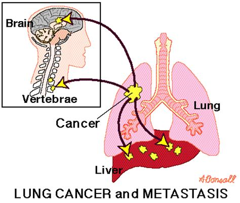 metastatic cancer with liver and lung metastas picture 13