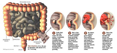 colonic effects of the skin picture 14