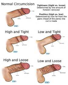 types of penis pics picture 2