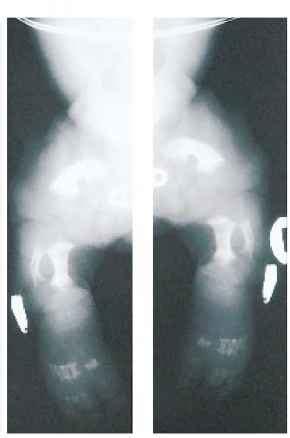 comfrey cream hernia picture 14