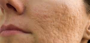 cover acne pit scar skin picture 13