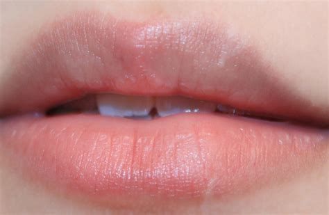 irratation on lips picture 1