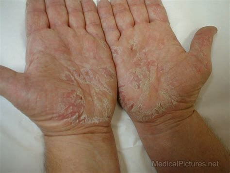 skin diseases causing white itchyless patches in the fingers and feet picture 8
