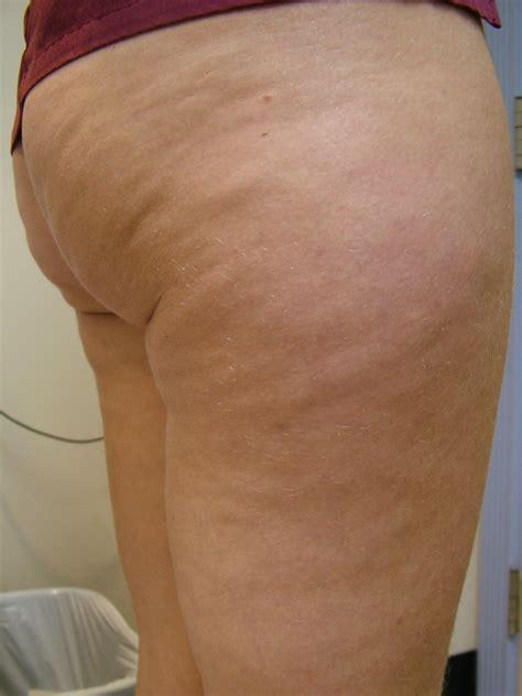 cellulite pic picture 11