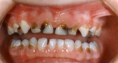 decaying teeth pictures picture 7
