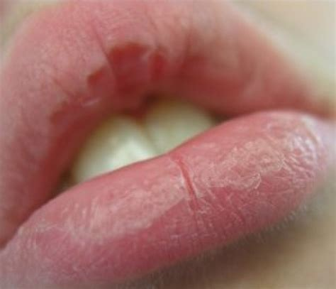 chapped lips picture 2