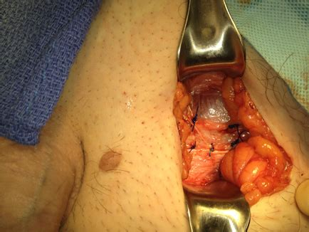 ky dr mesh removal picture 1