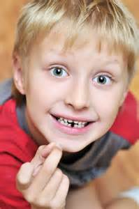 baby teeth losing picture 15