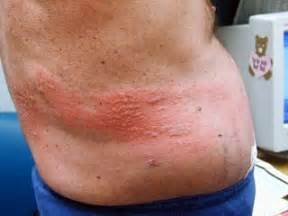 herpes outbreak causes prostate pain picture 7