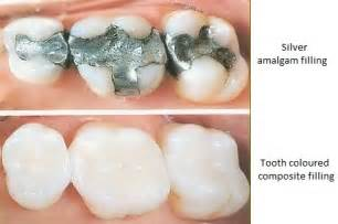 filling cavities in wisdom h picture 2