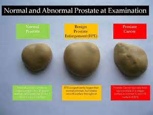 icd 9 codes for prostate enlargement picture 14