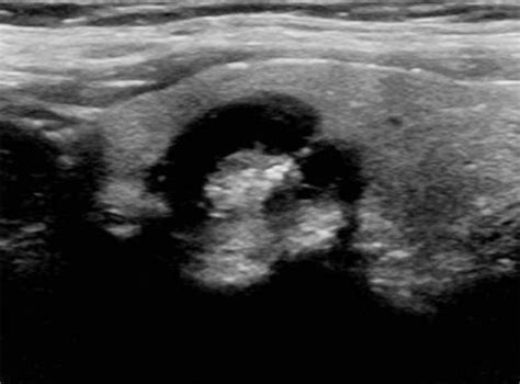 smooth texter thyroid nodule picture 4