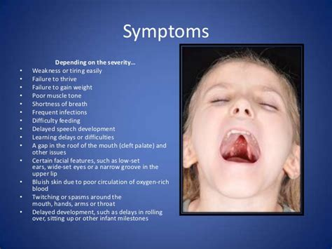 symptoms of cleft lip picture 14