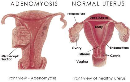 adenomyomatosis treatment picture 7