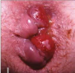 hemorrhoid prolapse picture 19