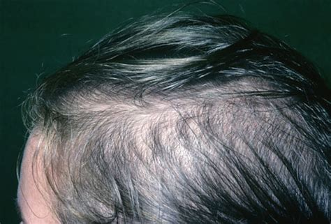 alapica female hair loss picture 11