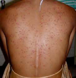 androgenic acne picture 5