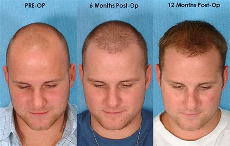 cost of hair transplants picture 10