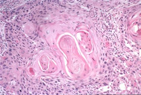 dysplastic cells skin picture 10