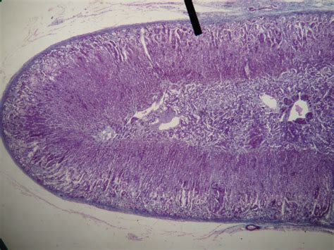 high testosterone adrenal gland picture 1
