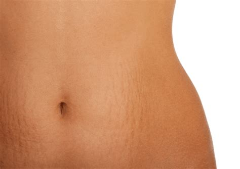 cod liver oil to repair stretch marks picture 3