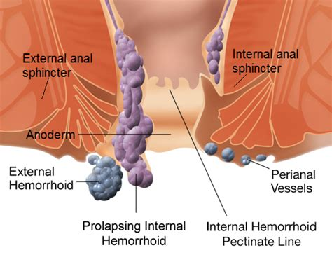 treating hemorrhoids naturally picture 13