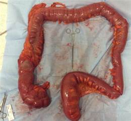 intestinal pseudo obstruction symptoms picture 6