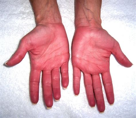 why do liver problems give you itchy skin picture 2