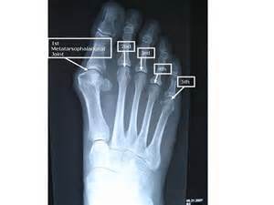 injury to mtp joint of fifth metatarsal picture 1