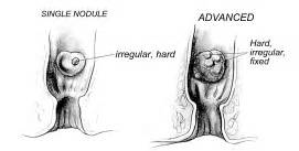 Uneven prostate picture 7
