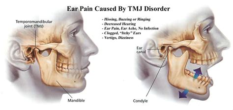 chroic ear pain twinge picture 7