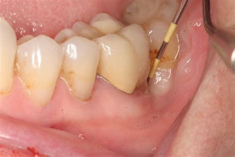 abseste teeth picture 6