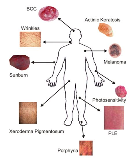 types of skin disorders picture 2