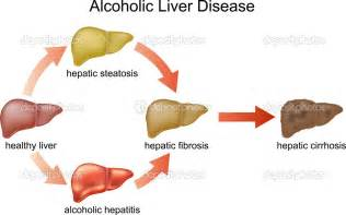 alcohol liver disease picture 6