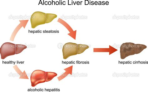 alcoholic liver diseases picture 19