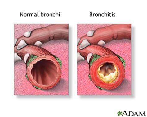 sinus ear infection bronchitis prescription picture 7