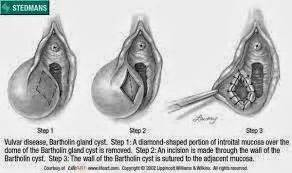 tea s and bartholin cyst picture 3