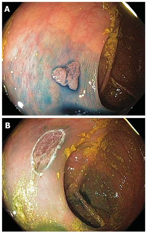 cancerous polop in colon picture 15